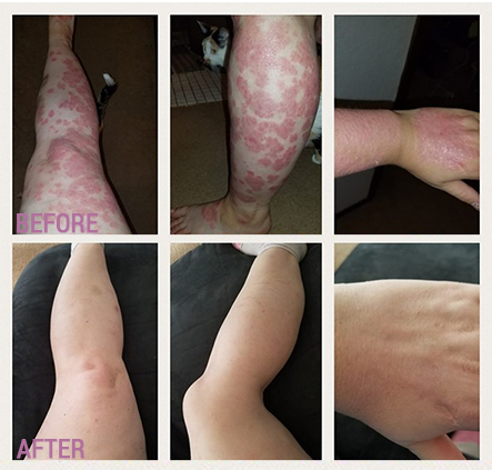 Good Results From Using Comizla