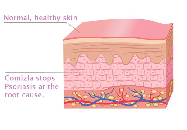 Comizla Psoriasis Treatment Step 3